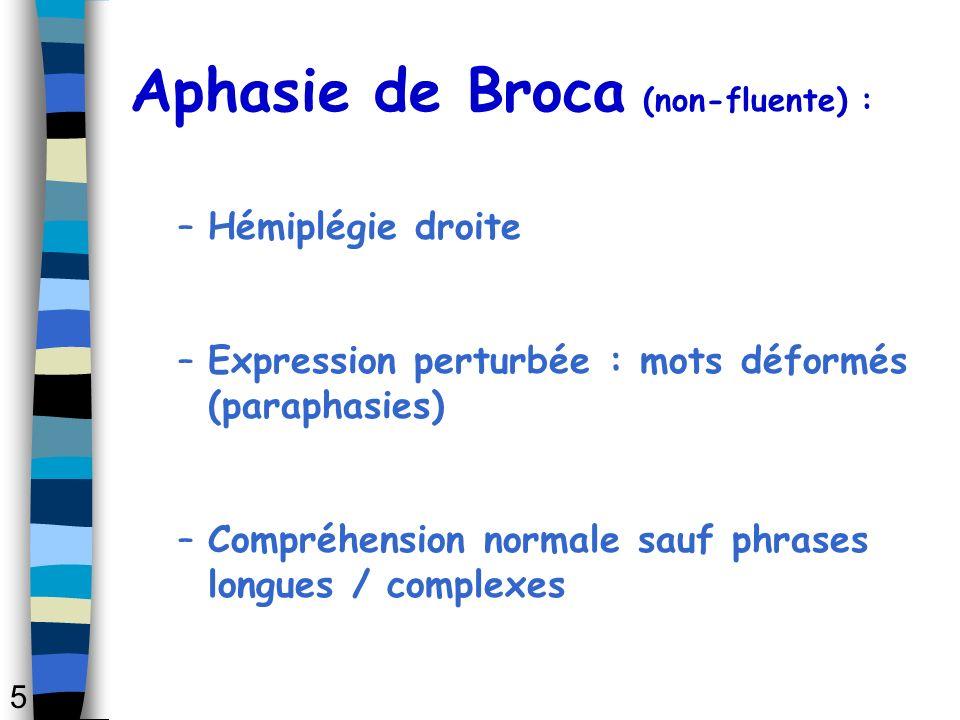 Aphasie de Broca (non-fluente) :