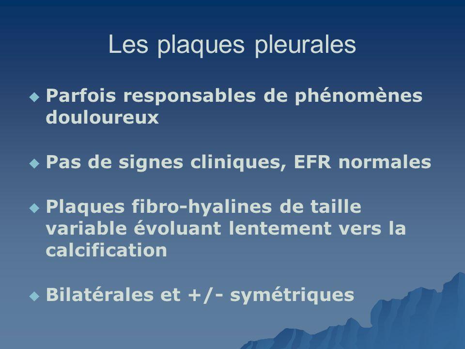 Les plaques pleurales Parfois responsables de phénomènes douloureux