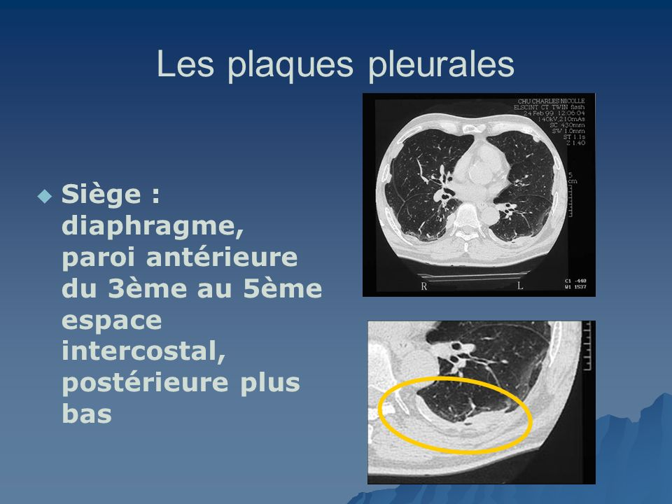 Les plaques pleurales Siège : diaphragme, paroi antérieure du 3ème au 5ème espace intercostal, postérieure plus bas.