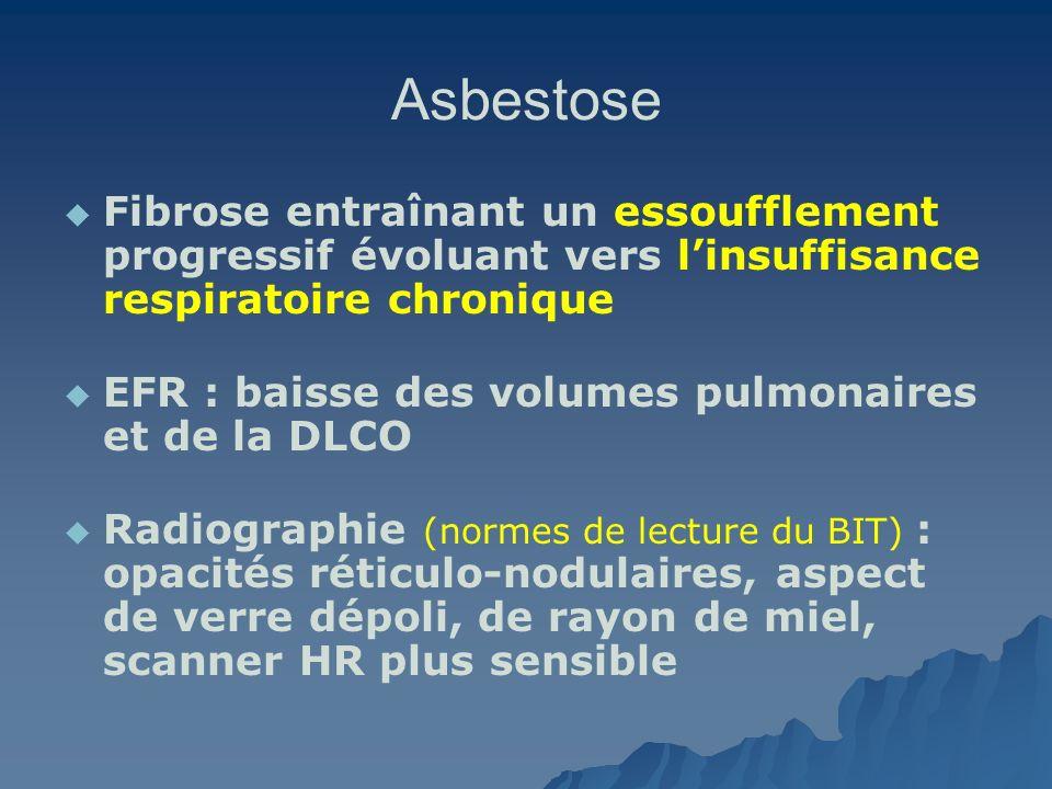 Asbestose Fibrose entraînant un essoufflement progressif évoluant vers l'insuffisance respiratoire chronique.