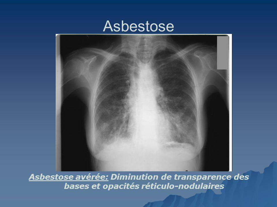 Asbestose Asbestose avérée: Diminution de transparence des bases et opacités réticulo-nodulaires