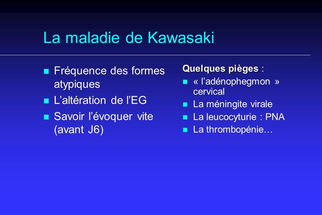 La maladie de Kawasaki Fréquence des formes atypiques