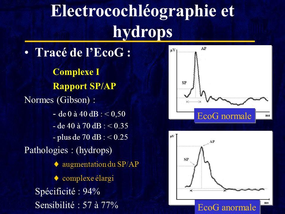 Electrocochléographie et hydrops
