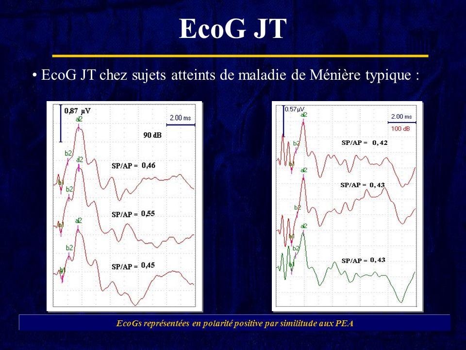 EcoGs représentées en polarité positive par similitude aux PEA