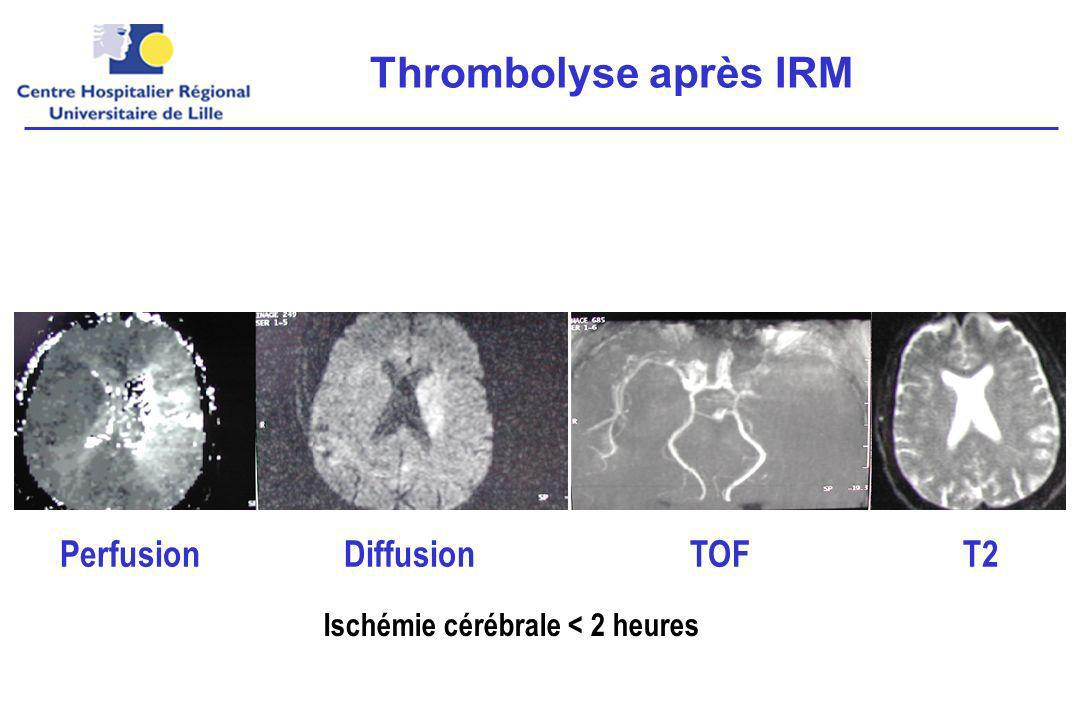 Thrombolyse après IRM Perfusion Diffusion TOF T2