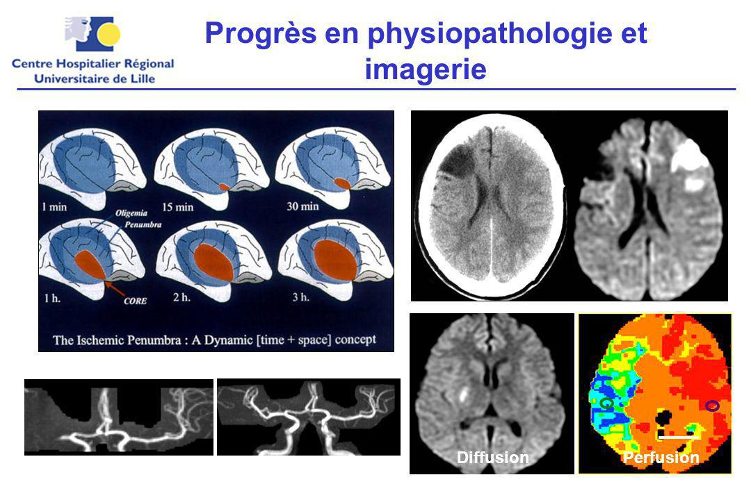 Progrès en physiopathologie et imagerie