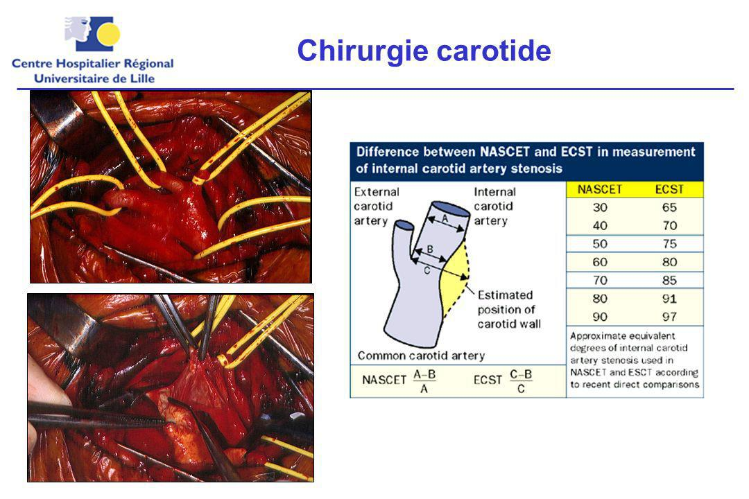 Chirurgie carotide La seule indication validée du traitement chirurgical en prévention secondaire est la chirurgie carotide.