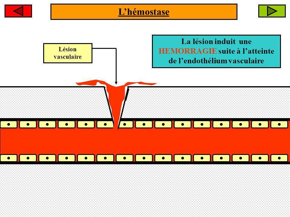 L'hémostase La lésion induit une HEMORRAGIE suite à l'atteinte de l'endothélium vasculaire.