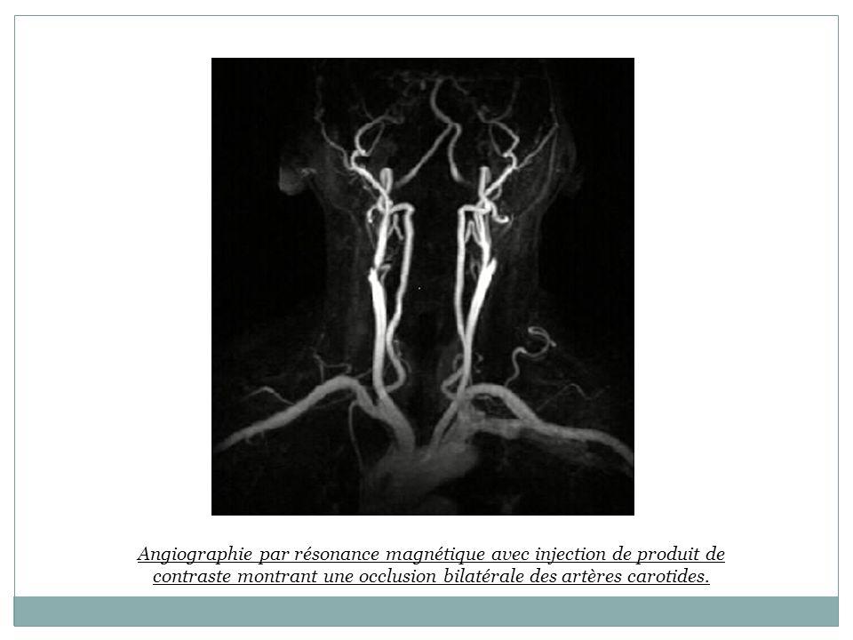 Angiographie par résonance magnétique avec injection de produit de contraste montrant une occlusion bilatérale des artères carotides.