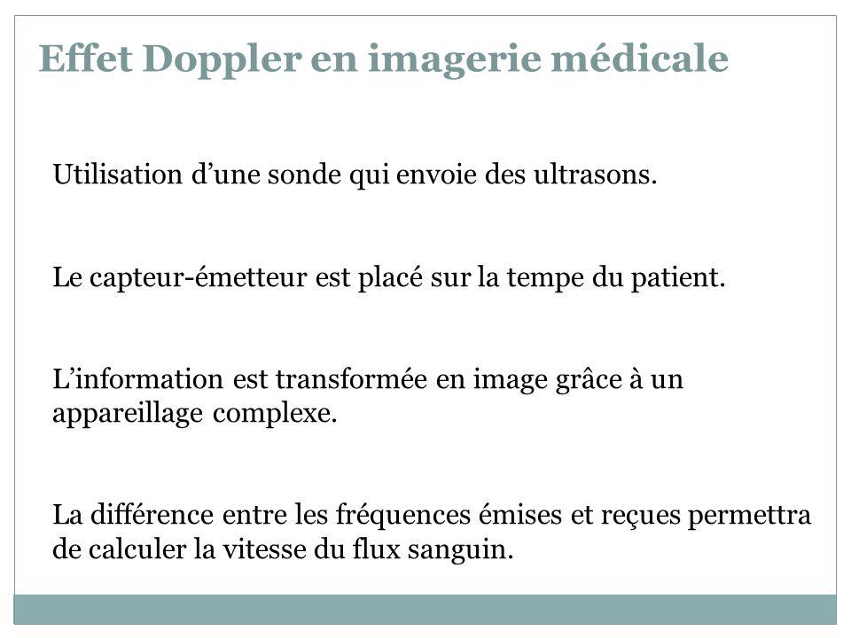 Effet Doppler en imagerie médicale