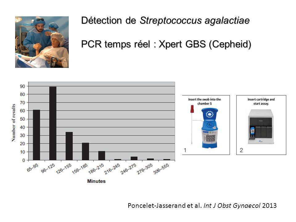 Détection de Streptococcus agalactiae