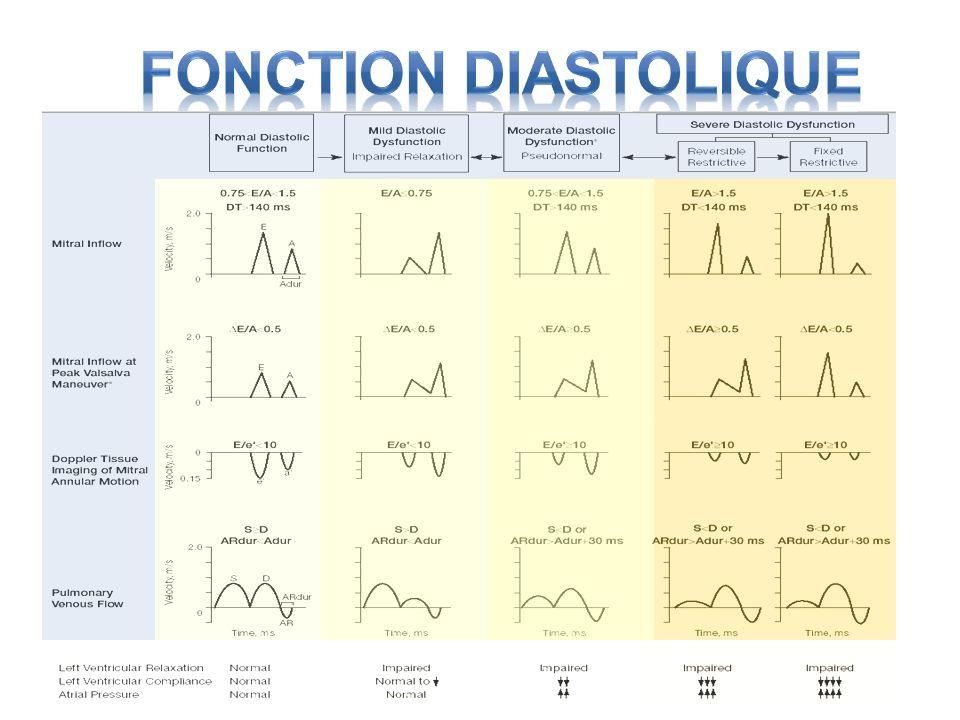 Fonction Diastolique