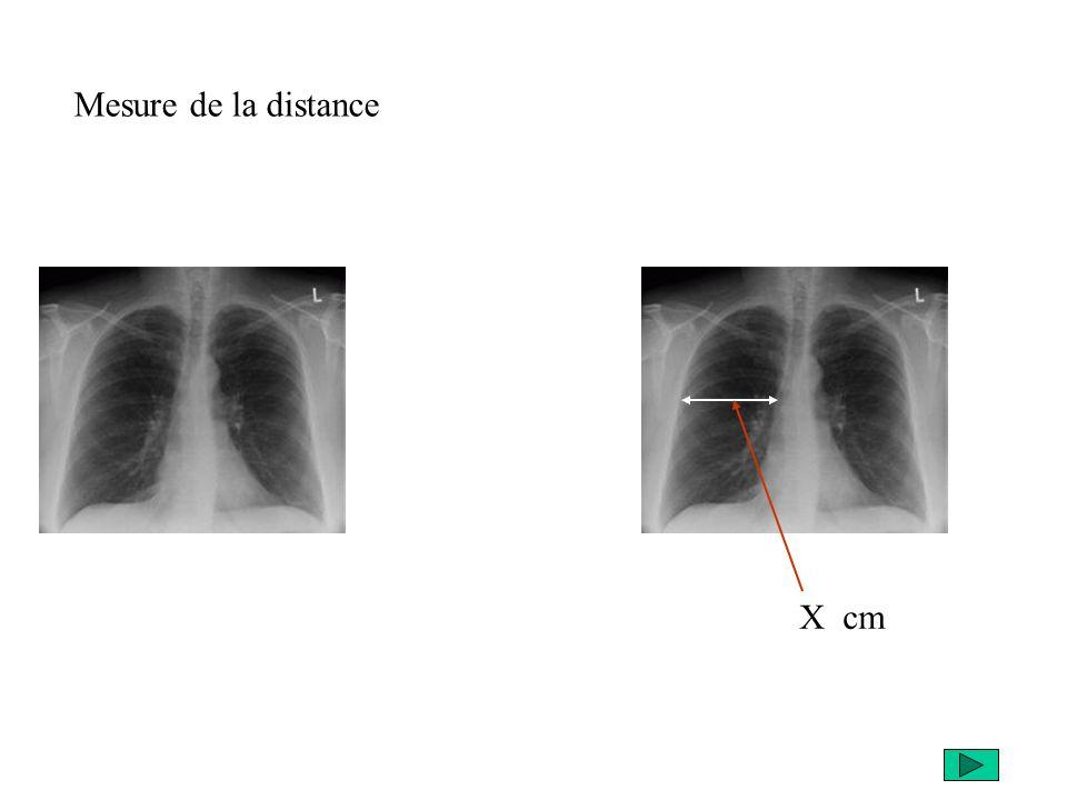Mesure de la distance X cm