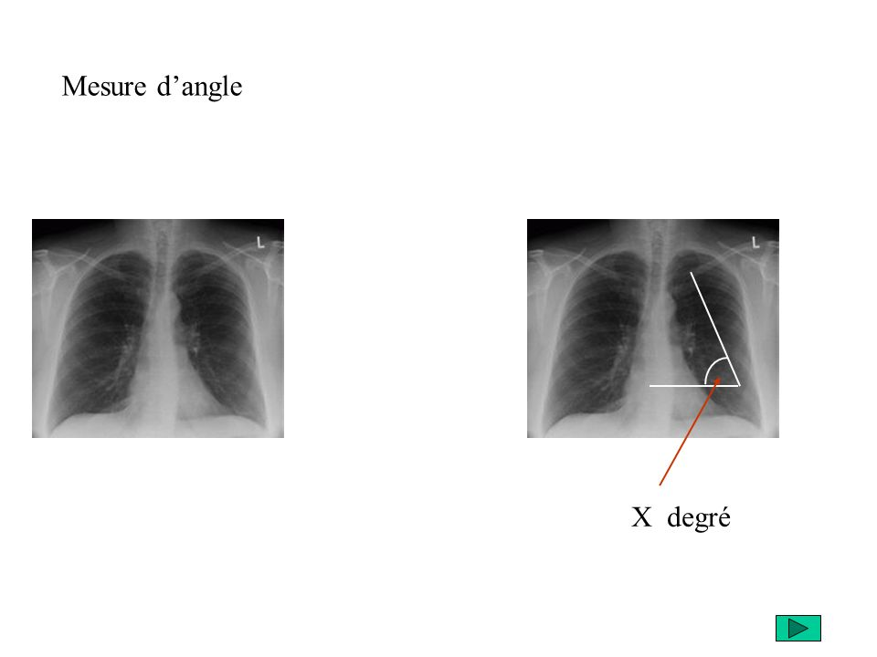 Mesure d'angle X degré