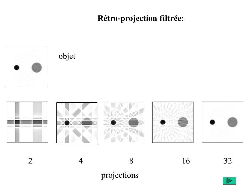 Rétro-projection filtrée: