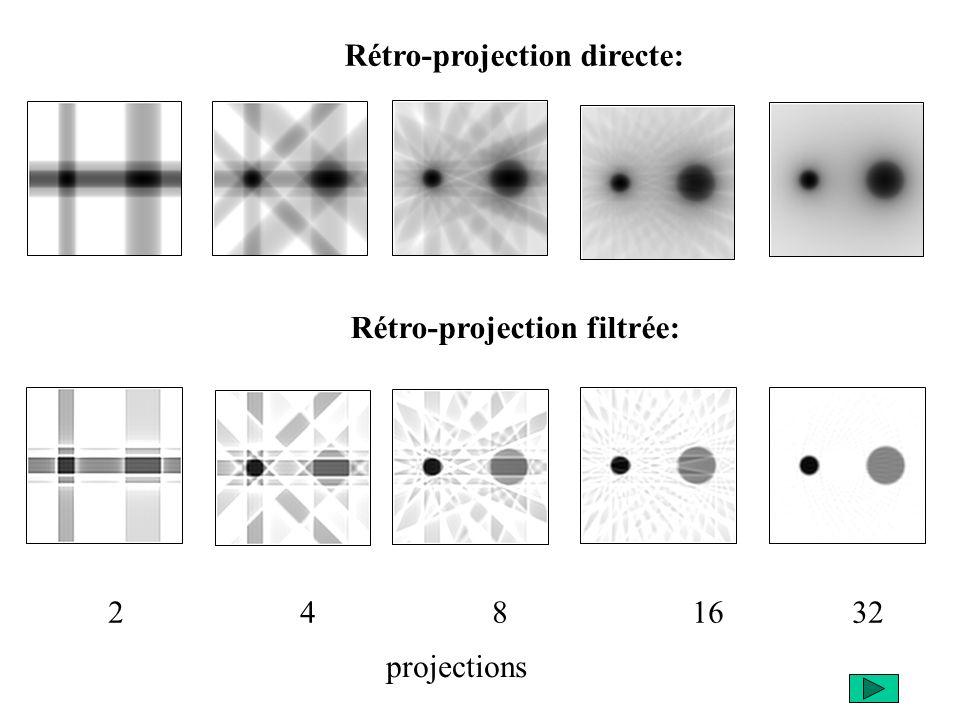Rétro-projection directe: Rétro-projection filtrée: