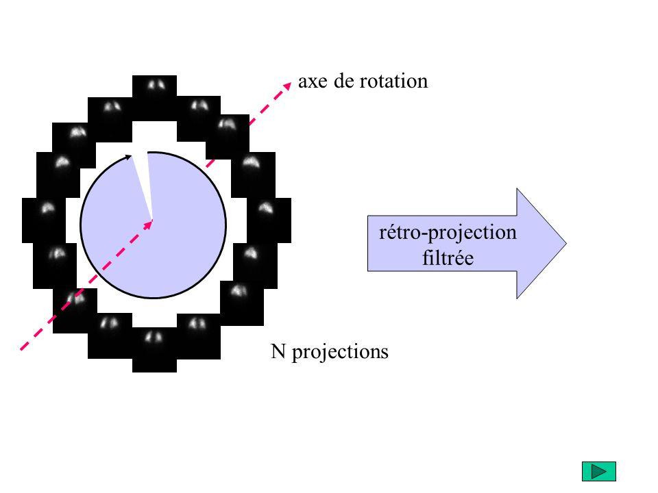 rétro-projection filtrée