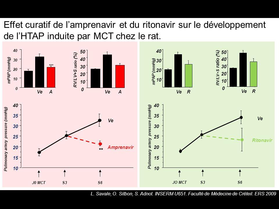 Effet curatif de l'amprenavir et du ritonavir sur le développement de l'HTAP induite par MCT chez le rat.