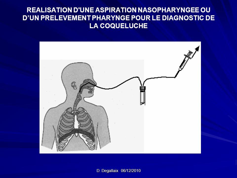 REALISATION D UNE ASPIRATION NASOPHARYNGEE OU D'UN PRELEVEMENT PHARYNGE POUR LE DIAGNOSTIC DE LA COQUELUCHE