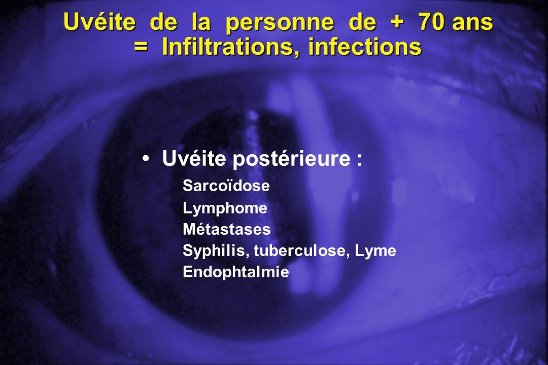 Uvéite de la personne de + 70 ans = Infiltrations, infections