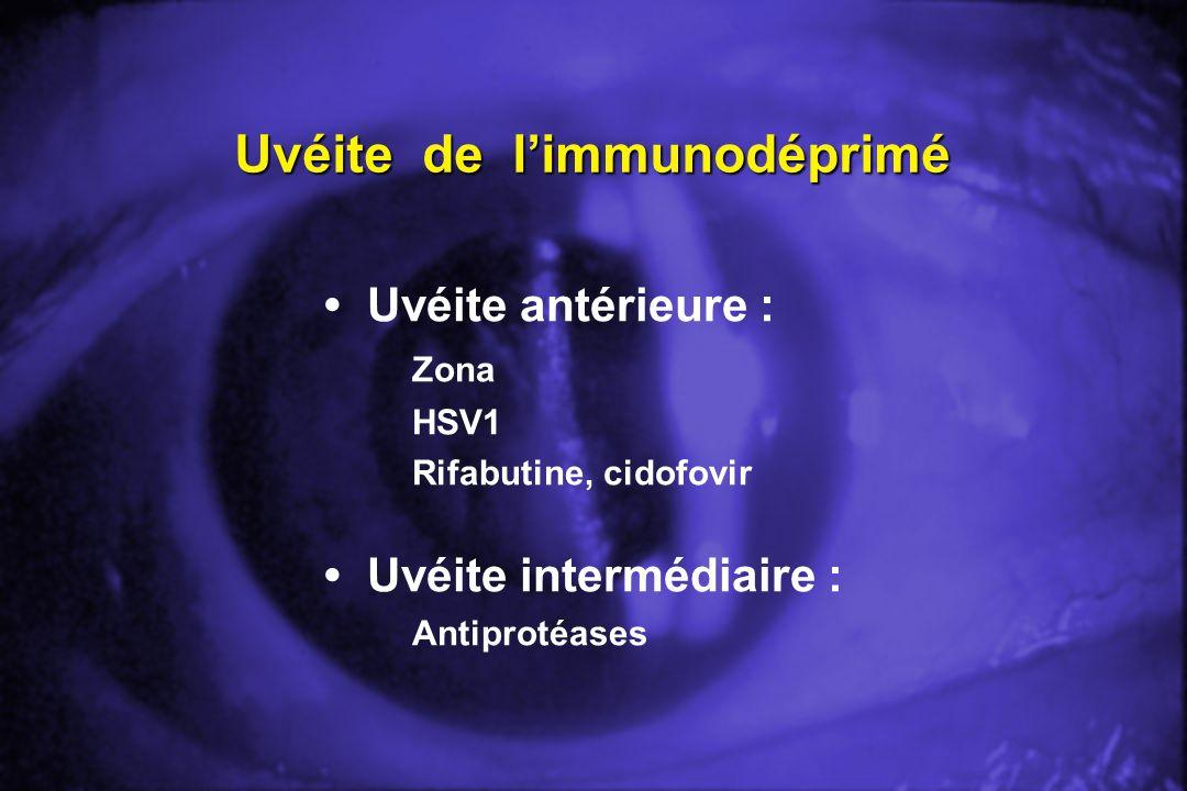 Uvéite de l'immunodéprimé