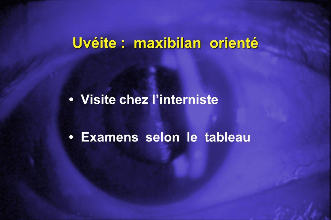 Uvéite : maxibilan orienté