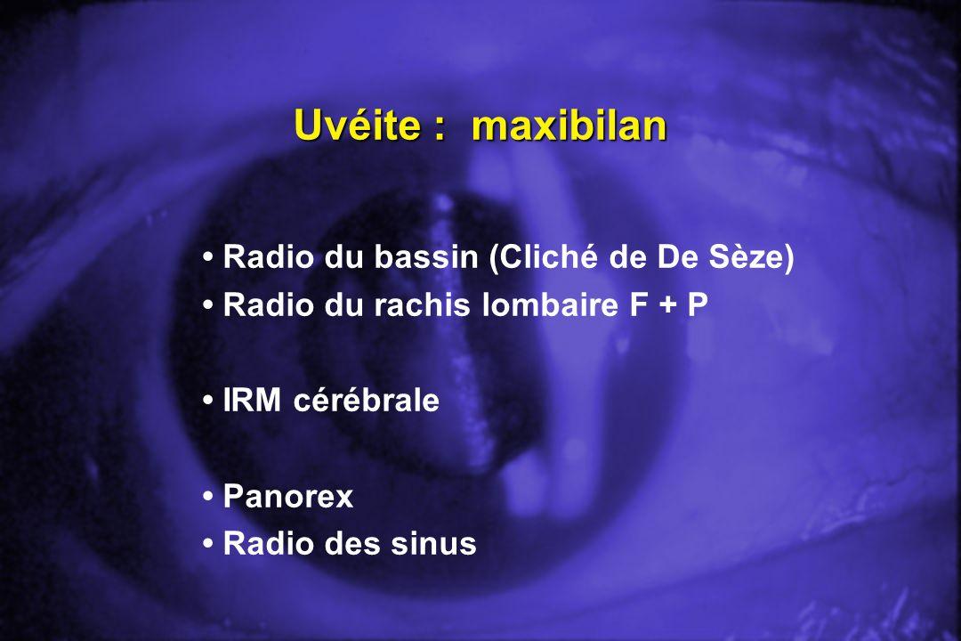 Uvéite : maxibilan • Radio du bassin (Cliché de De Sèze)