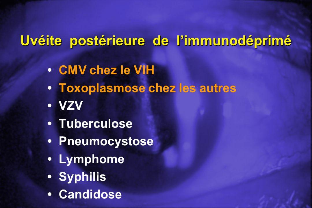 Uvéite postérieure de l'immunodéprimé