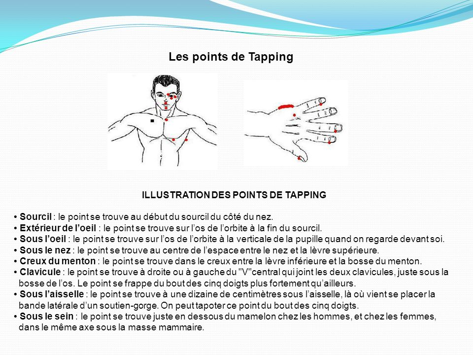 ILLUSTRATION DES POINTS DE TAPPING