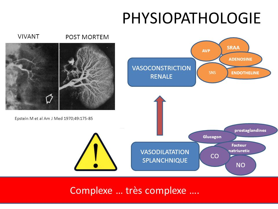 PHYSIOPATHOLOGIE Complexe … très complexe …. VIVANT POST MORTEM