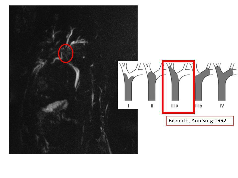 Bismuth, Ann Surg 1992 Amputation de la convergence biliaire