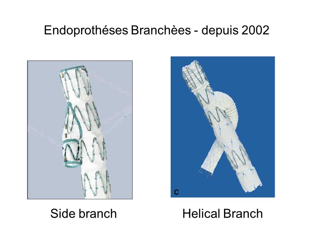 Endoprothéses Branchèes - depuis 2002