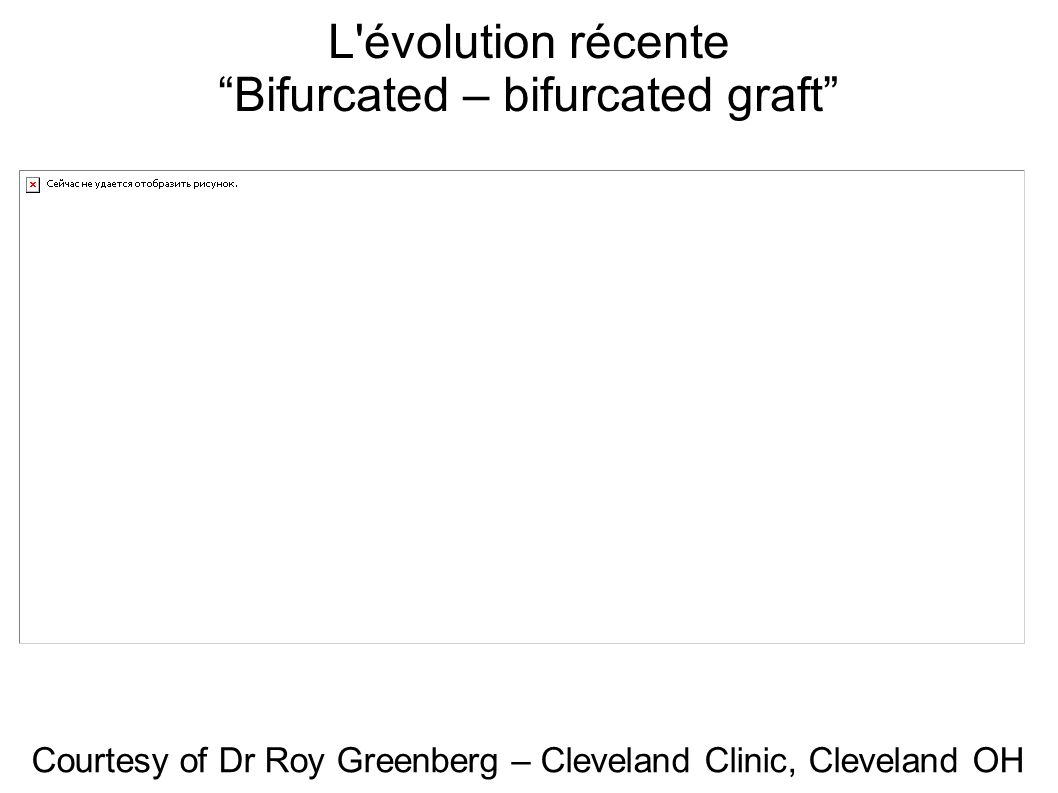 Bifurcated – bifurcated graft