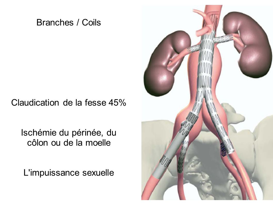 Claudication de la fesse 45%