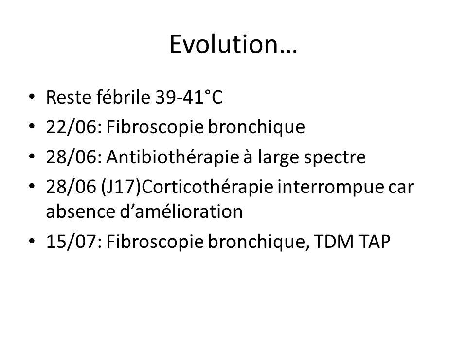 Evolution… Reste fébrile 39-41°C 22/06: Fibroscopie bronchique