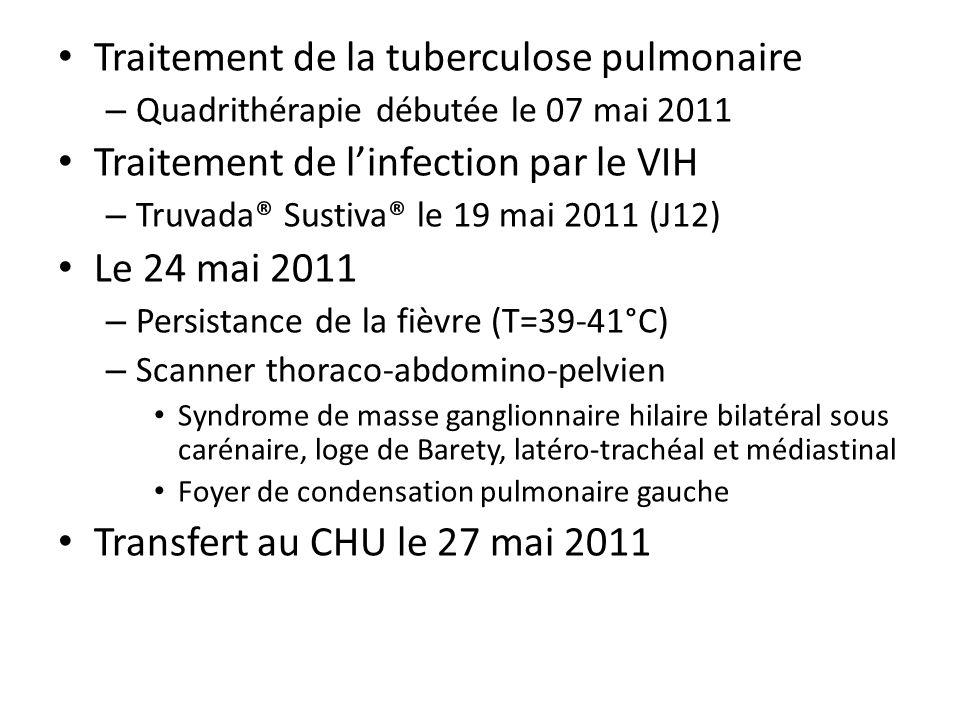 Traitement de la tuberculose pulmonaire