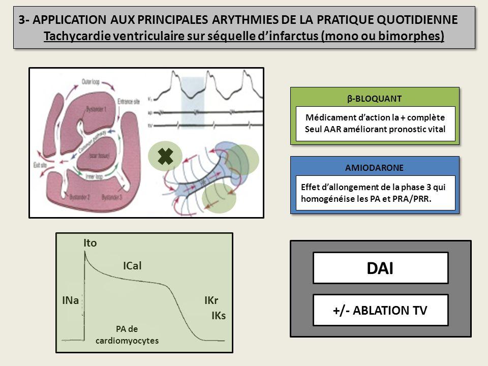 Tachycardie ventriculaire sur séquelle d'infarctus (mono ou bimorphes)
