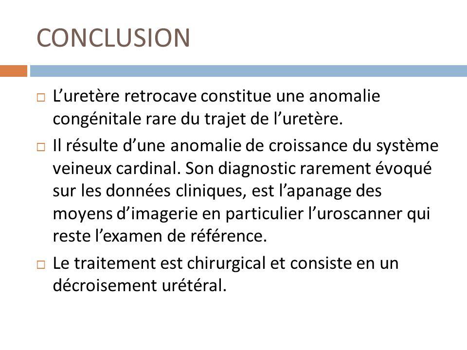 CONCLUSION L'uretère retrocave constitue une anomalie congénitale rare du trajet de l'uretère.