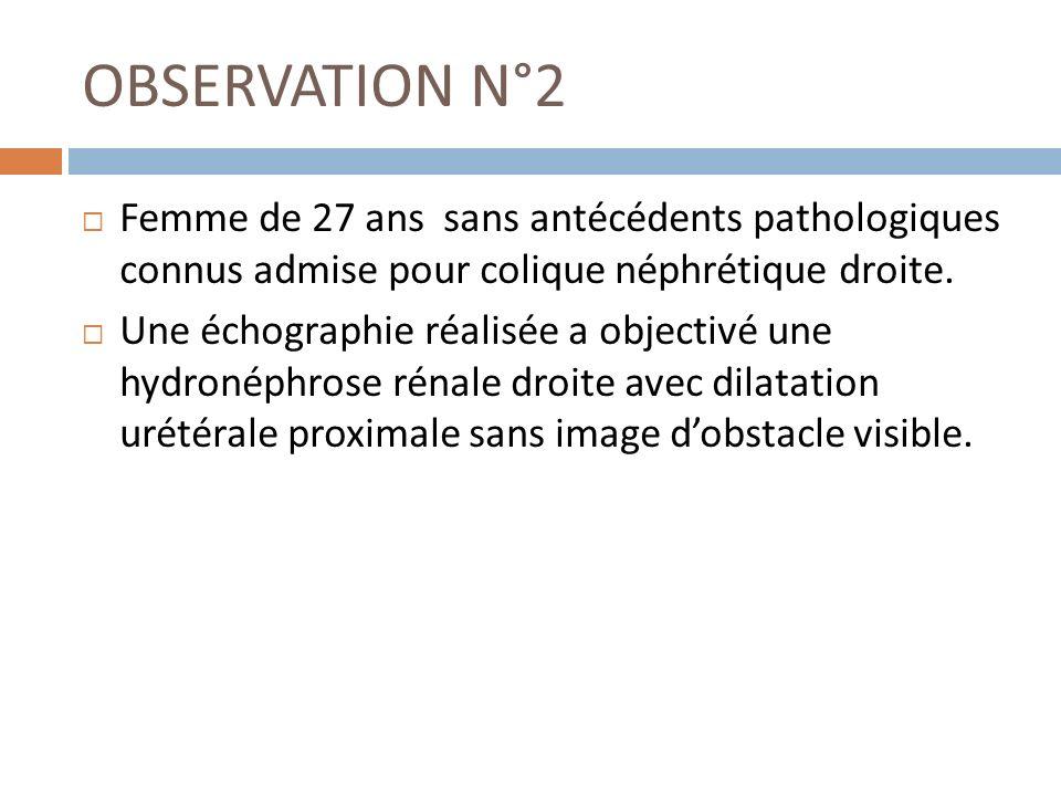 OBSERVATION N°2 Femme de 27 ans sans antécédents pathologiques connus admise pour colique néphrétique droite.