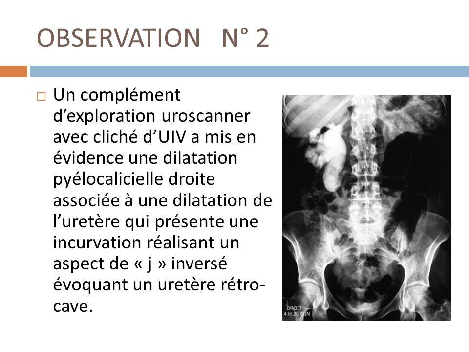 OBSERVATION N° 2