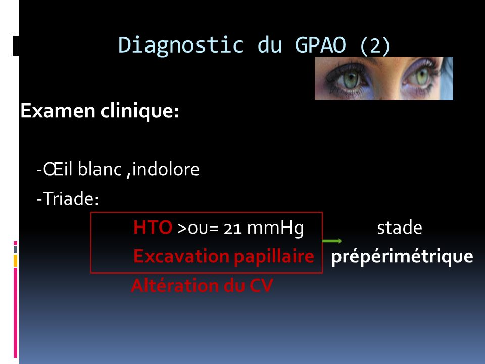 Diagnostic du GPAO (2) Examen clinique: -Œil blanc ,indolore -Triade: