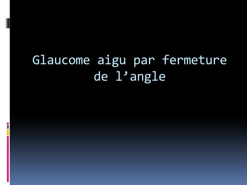 glaucome aigu par fermeture de l angle pdf