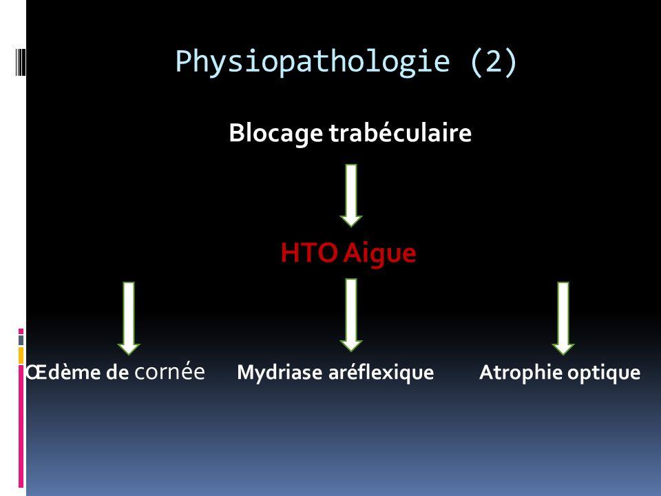 Physiopathologie (2) HTO Aigue Blocage trabéculaire