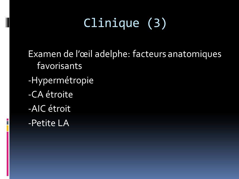 Clinique (3) Examen de l'œil adelphe: facteurs anatomiques favorisants -Hypermétropie -CA étroite -AIC étroit -Petite LA