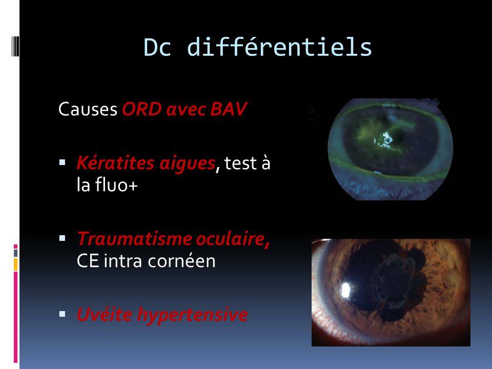 Dc différentiels Causes ORD avec BAV Kératites aigues, test à la fluo+