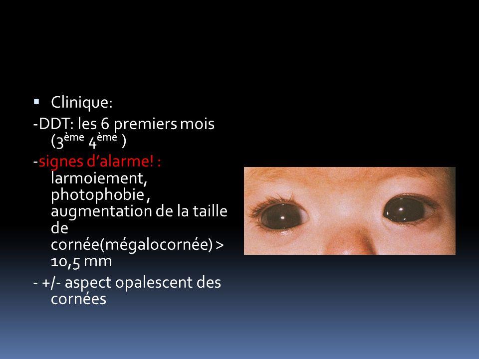 Clinique: -DDT: les 6 premiers mois (3ème 4ème )