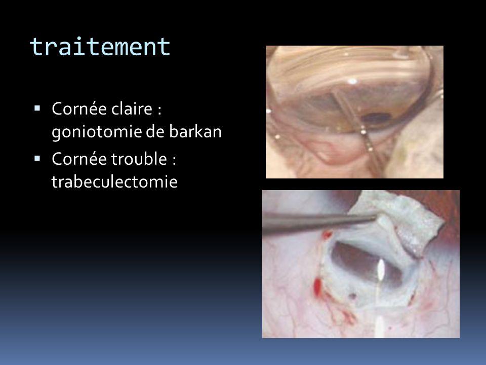 traitement Cornée claire : goniotomie de barkan