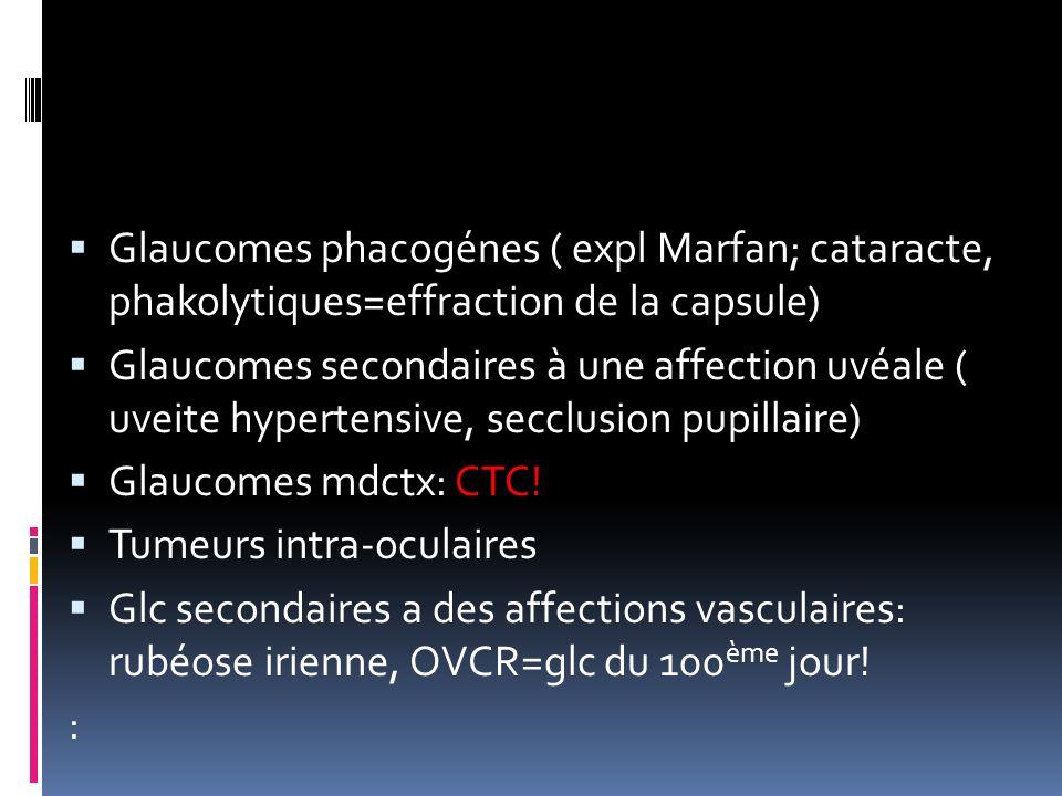 Glaucomes phacogénes ( expl Marfan; cataracte, phakolytiques=effraction de la capsule)