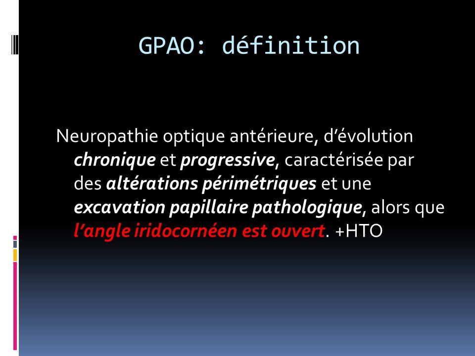 GPAO: définition