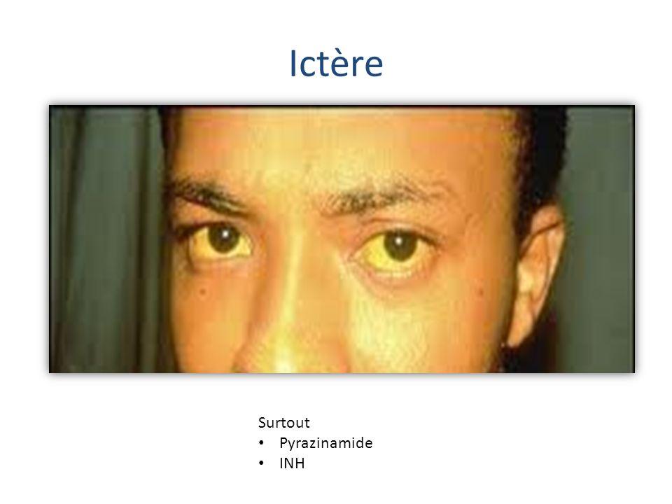 Ictère Surtout Pyrazinamide INH